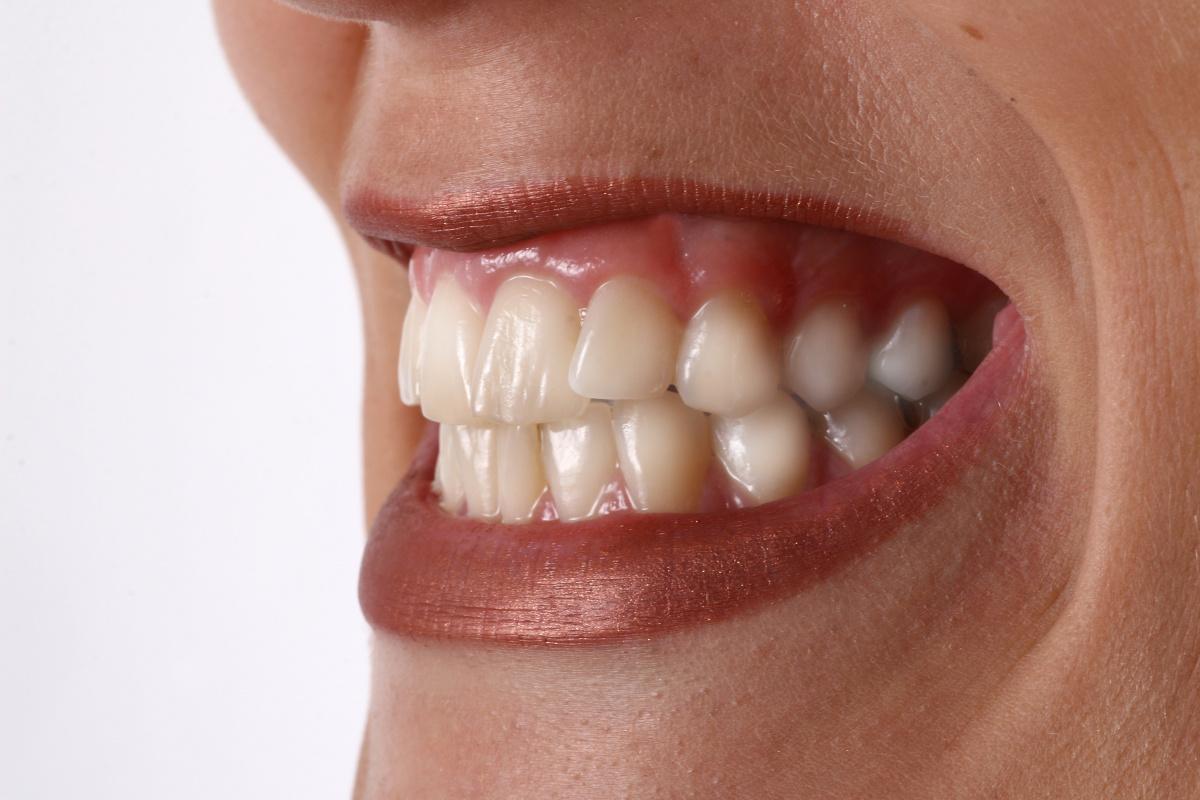 Nahaufnahme eines geöffneten Frauenmundes in dem Zusammengepresste Zähne zu sehen sind, die Zähneknirschen verursachen können